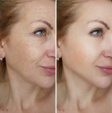 Before and After Progesterone TreatmentResults
